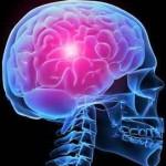 Kenali Gejala Tumor Otak