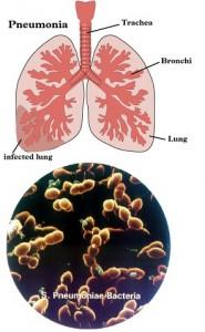 Penyakit Pernafasan Pneumonia