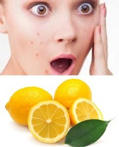 jerawat dengan lemon