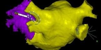 Deteksi Kelainan Jantung dengan 3D Mapping System