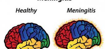 Mengenal Meningitis dan Jenisnya