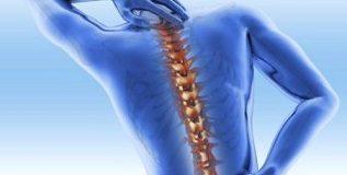 4 Hal Tak Terduga Ini Ternyata Bisa Memicu Osteoporosis