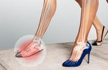 Memakai High Heels Tanpa Tersiksa Rasa Sakit? Ini Tipsnya!